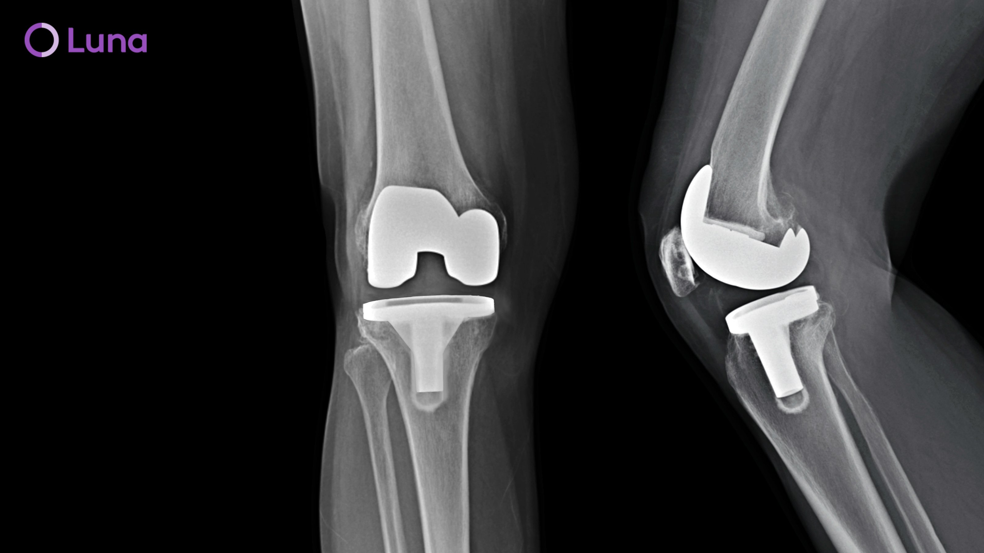 Is Knee Replacement Surgery Right for You?
