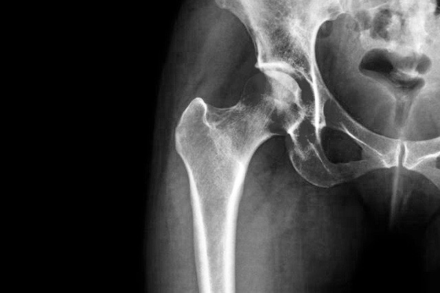 Healing From Hip Fractures With Physical Therapy