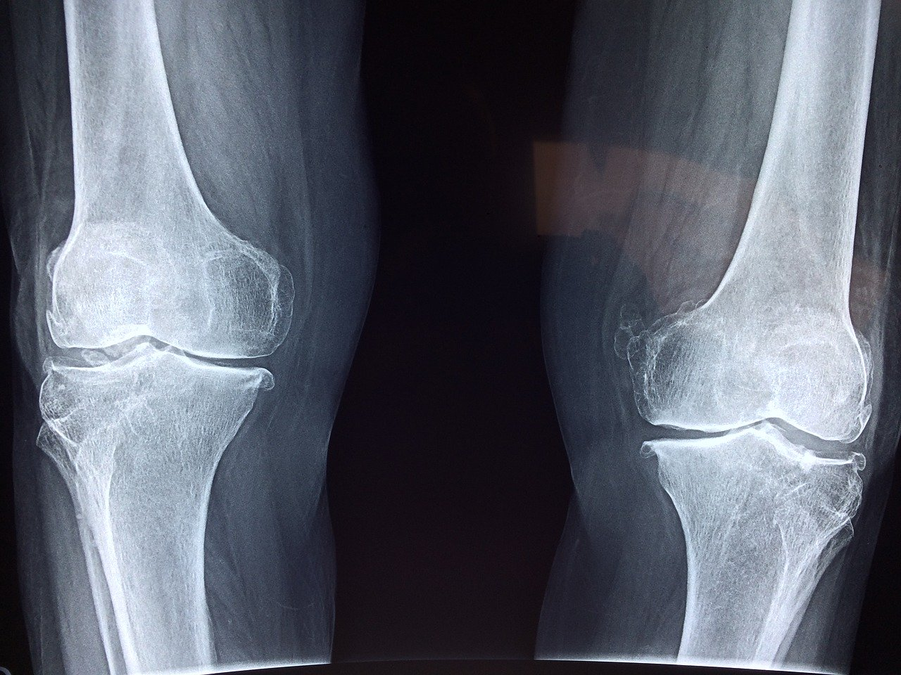 How to Live the Good Life with Osteoarthritis